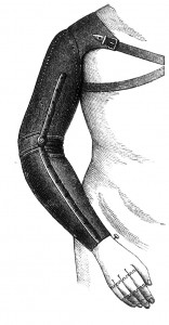 ..auch ruhigstellen ist ja eine beliebte Therapie der Orthopäden bei Epicondylitis